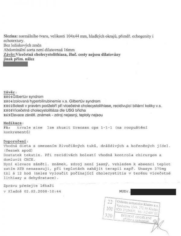 gallstones-galimir-gitev-06
