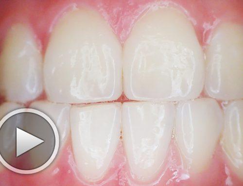Малки упражнения за по-здрави венци и зъби